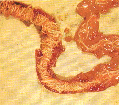 Roundworms in Birds